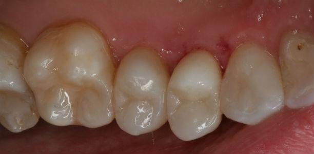 leczenie ortodontyczne w klinice Śmigiel