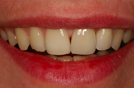 efekt po wstawieniu implanów stomatologicznych