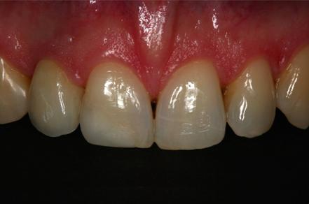 po wstawiebiu implanów stomatologicznych