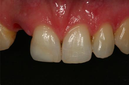 przed zabiegiem wstawiania implantów w klinice Śmigiel