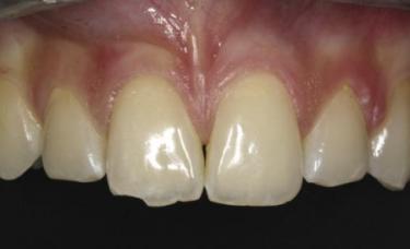 ułamany ząb przed leczeniem
