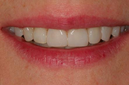 po leczeniu - efekt jaki daja licówki stomatologiczne