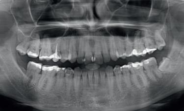 zdjecie RTG u stomatologa