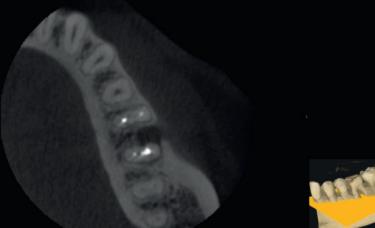 zdjęcie CBCT w endodoncji