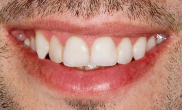 białe zdrowe zęby