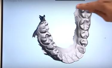 trójwymiarowy model uzębiebnia