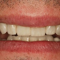 piekny usmiech po leczeniu i metamorfozie - stomatologia estetyczne