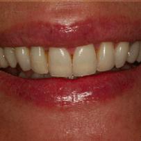 piekny uśmiech po leczeniu dentystycznym w klinice Śmigiel