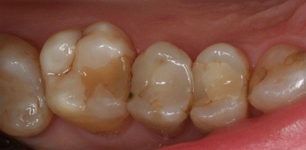 zeby pacjenta przed leczeniem ortodontycznym