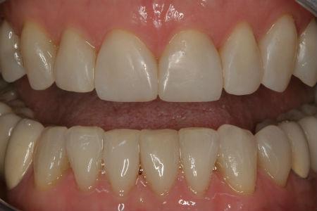 po leczeniu ortodontycznym w klinice Śmigiel