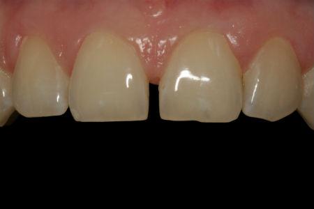 wada uzebienie diastema - przed leczeniem ortodontycznym