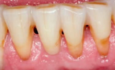 zęby z odsłonietymi szyjkami zębowymi