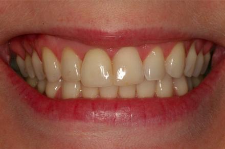 białe zęby po wybielaniu w gabiniecie stomatologa