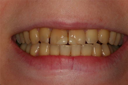 przez zabiegie wybielania zębów żywych