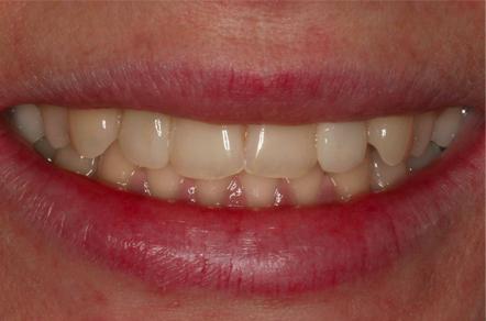 po zabiegu wybielania zębów żywych