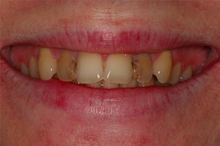 przebarwione zęby przed wybialaniem