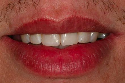 po wybialniu zębów w klinice Śmigiel
