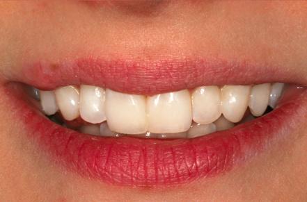 po stomatologicznym leczeniu - korekcie uśmiechu