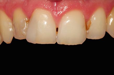 zęby przed wypełnieniem stomatologicznym
