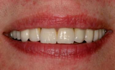piękny uśmiech zdrowe zęby