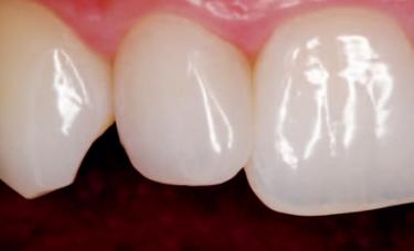 materiał kompozytowy na zębach