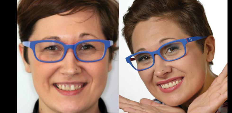 metamorfoza Rozalii - po zabiegach stomatologii i stomatologii estetycznej