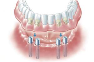 implanty-ratuja-zycie