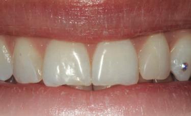 zdrowe zęby z bizuterią nazębna