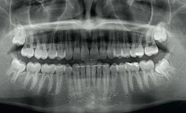 zdjęcie rentgenowskie u stomatologa