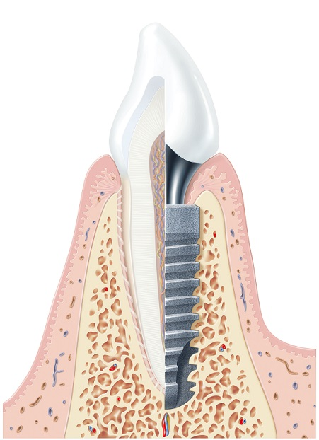 1219828-ANKYLOS Illustration Implant sliced-GPM-small