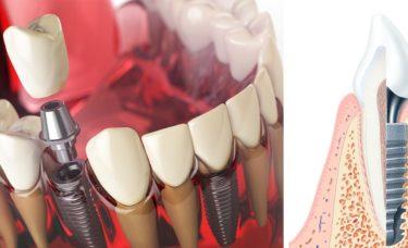 implanty-ile-wytrzymuja